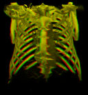 Stereoscopic (red/green) thorax (2.8 MB)